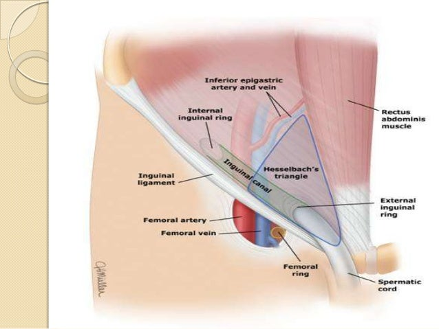 Inguinal hernia anatomy pictures