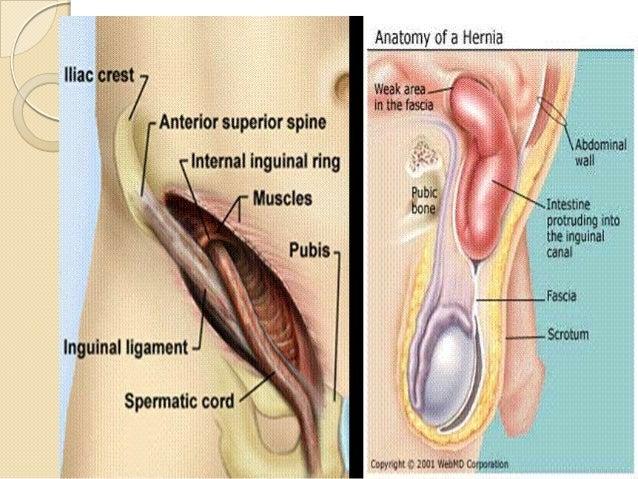 Female inguinal hernia anatomy