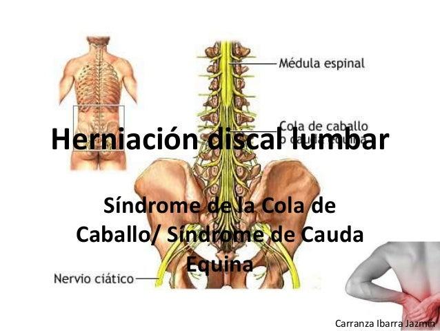 Herniación discal lumbar Síndrome de la Cola de Caballo/ Síndrome de Cauda Equina Carranza Ibarra Jazmín