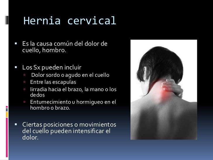 Las hernias de los discos intervertebrales del departamento lumbar de la columna vertebral el tratam