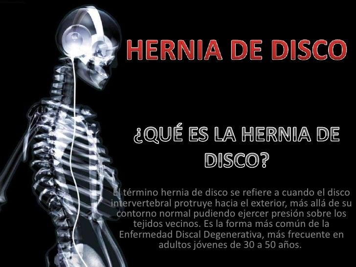 HERNIA DE DISCO<br />¿QUÉ ES LA HERNIA DE DISCO?<br />El término hernia de disco se refiere a cuando el disco intervertebr...