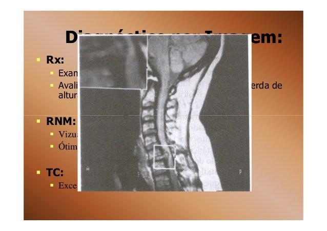 Exame hernia de disco