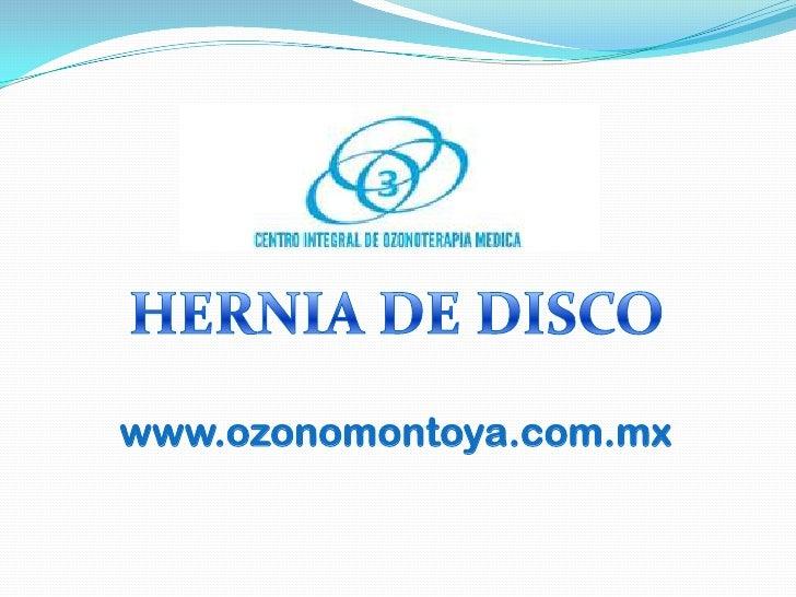 HERNIA DE DISCO www.ozonomontoya.com.mx