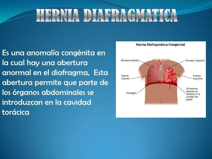 HERNIA DIAFRAGMATICA<br />Es una anomalía congénita en la cual hay una abertura anormal en el diafragma,  Esta abertura pe...