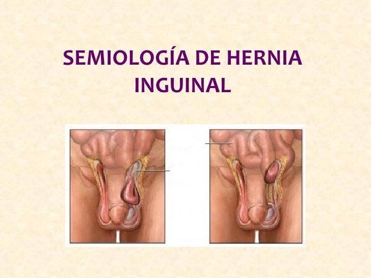 SEMIOLOGÍA DE HERNIA      INGUINAL