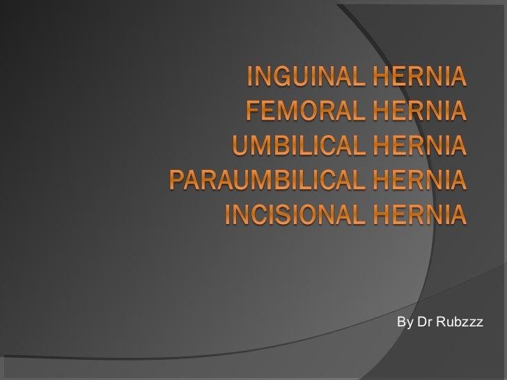 Hernia by Dr. Rubzzz