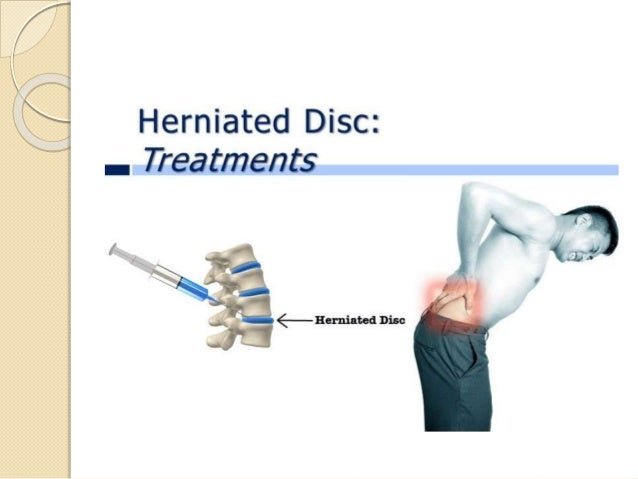 herniated disc symptoms  treatment  u0026 surgery