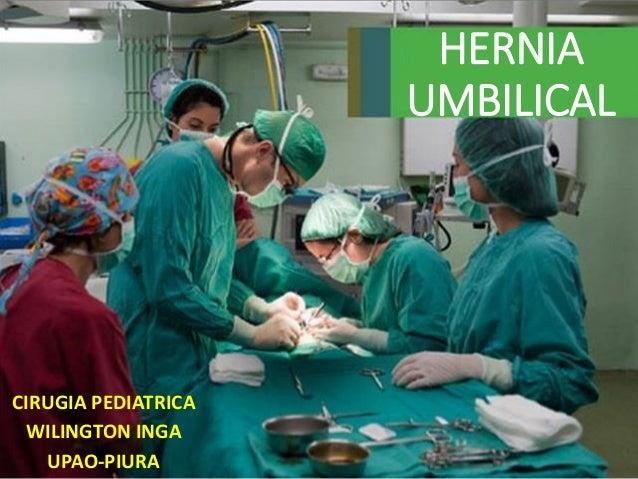 HERNIA UMBILICAL CIRUGIA PEDIATRICA WILINGTON INGA UPAO-PIURA