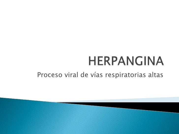 Herpangina