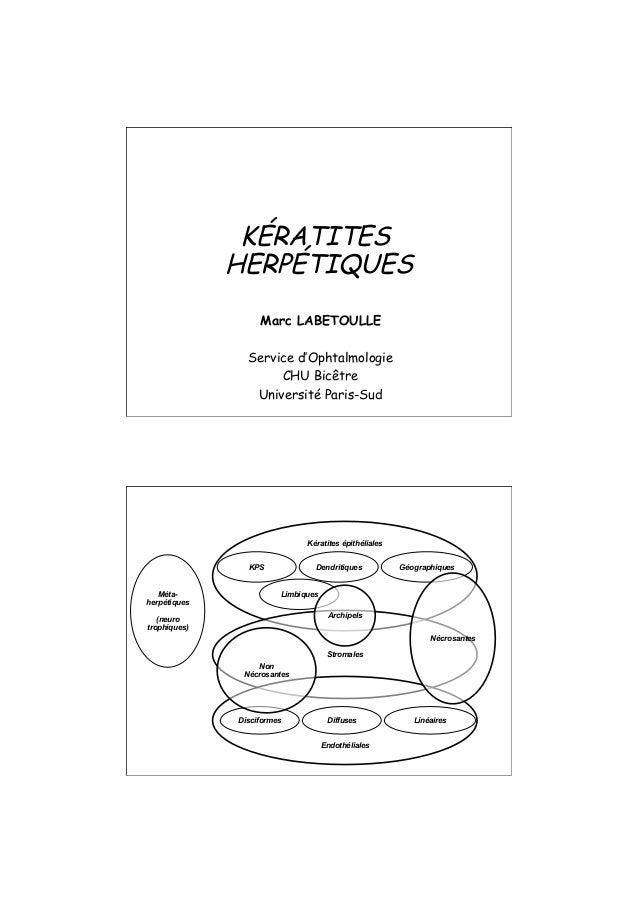 Marc LABETOULLE Service d'Ophtalmologie CHU Bicêtre Université Paris-Sud KÉRATITES HERPÉTIQUES Kératites épithéliales Dend...