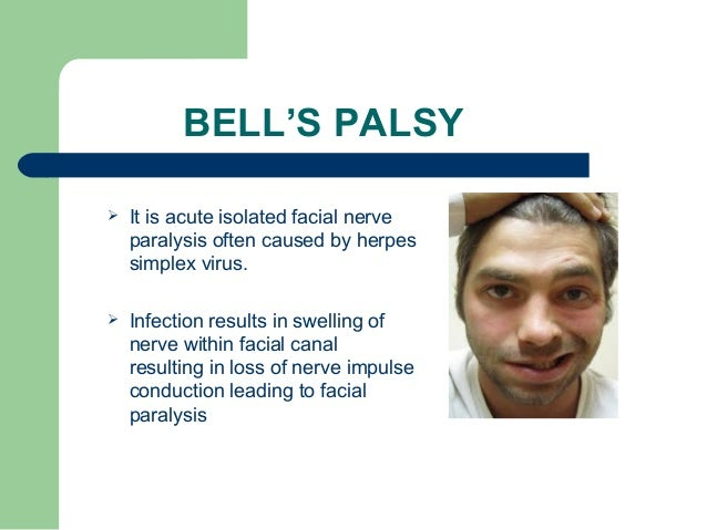 facial nerve infection viral