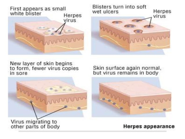 Stages Of Genital Herpes Pictures Photos