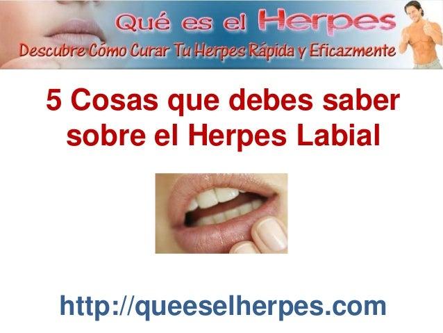 Adesivos De Parede Infantil Super Herois ~ 5 Cosas que debes saber sobre El Herpes Labial
