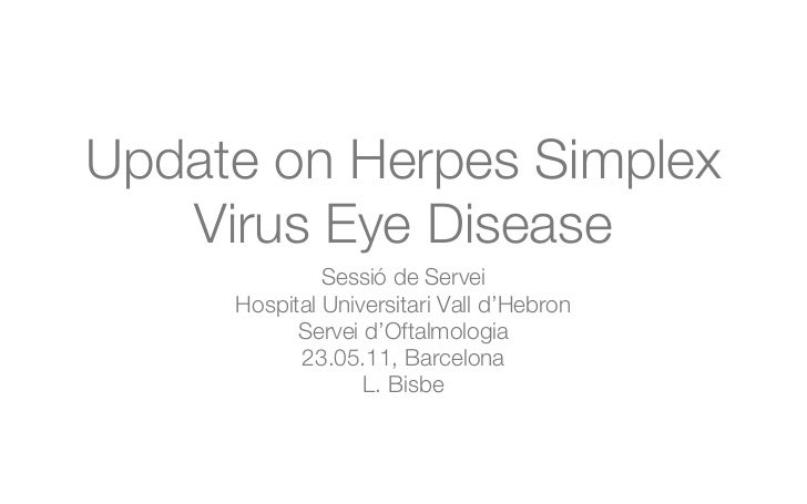 Update on herpes simplex virus keratitis
