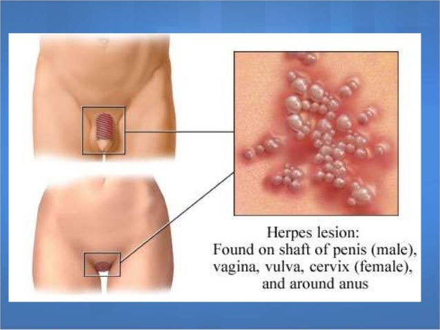 Herpes Pictures & Symptoms of Herpes Simplex
