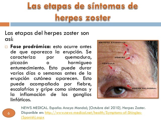 herpes essay Herpes is a global problem that is becoming more prevalent as adolescents are becoming sexually active this paper will talk about how herpes simplex 1 is often treated by each occurrence which is known as episodic treatment and how herpes simplex 2 can be treated both by the occurrence (episodically) and long term which is [.