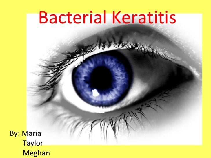 BY: Maria Mandese Taylor Bacterial Keratitis By: Maria Taylor Meghan