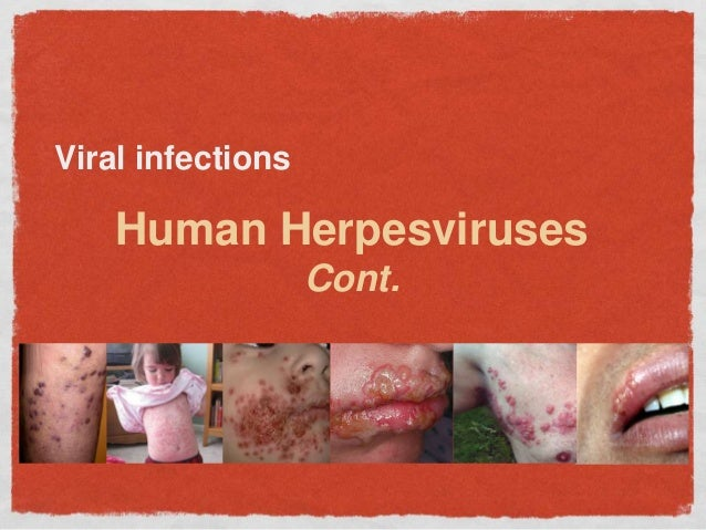 Viral infections Human Herpesviruses Cont.
