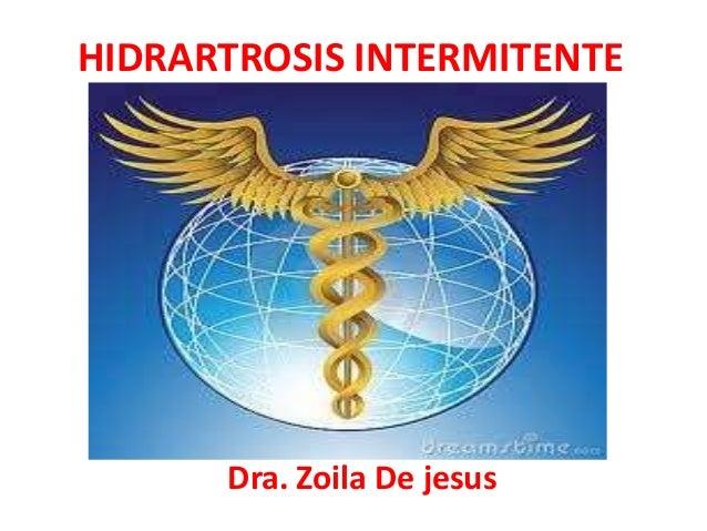 Hidrartrosis intermitente