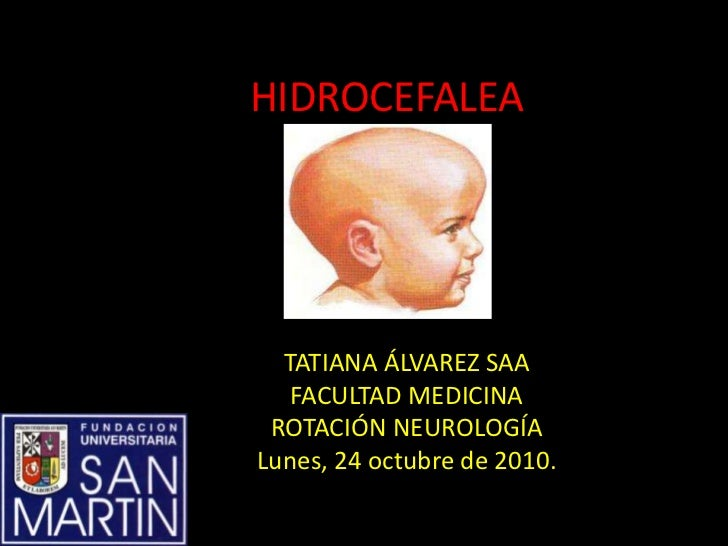 HIDROCEFALEA  TATIANA ÁLVAREZ SAA   FACULTAD MEDICINA ROTACIÓN NEUROLOGÍALunes, 24 octubre de 2010.