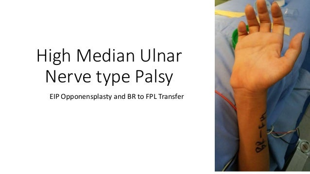 High median ulnar nerve type palsy