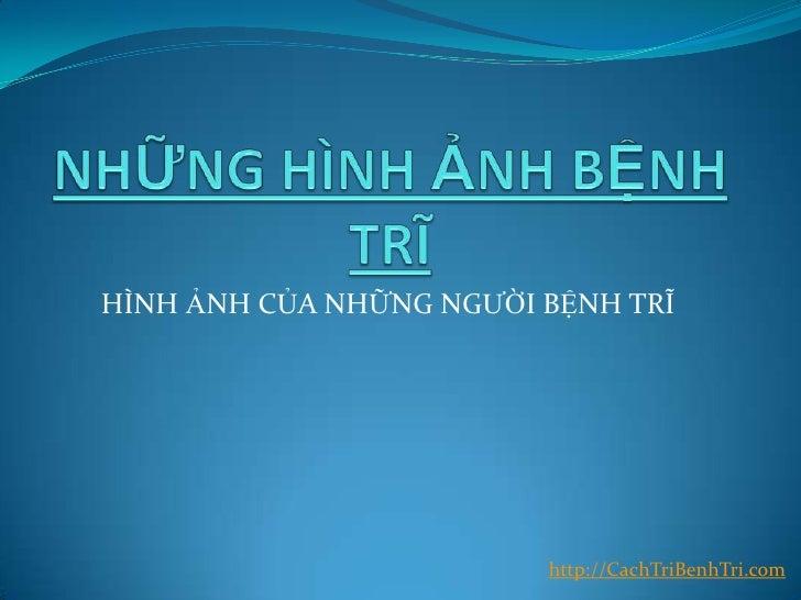 Hinh anh-benh-tri