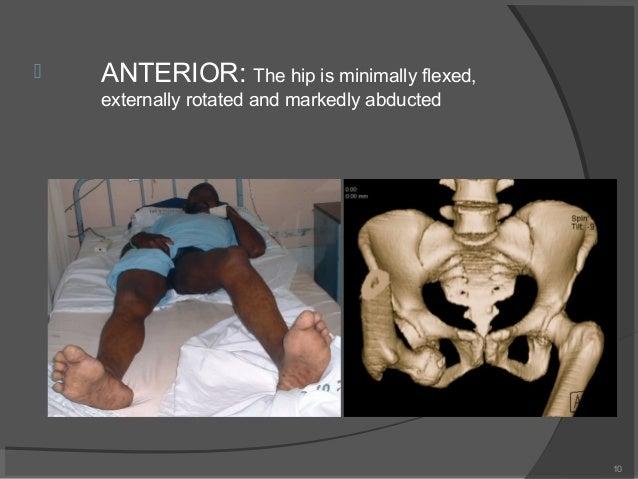 posterior tibial nerve