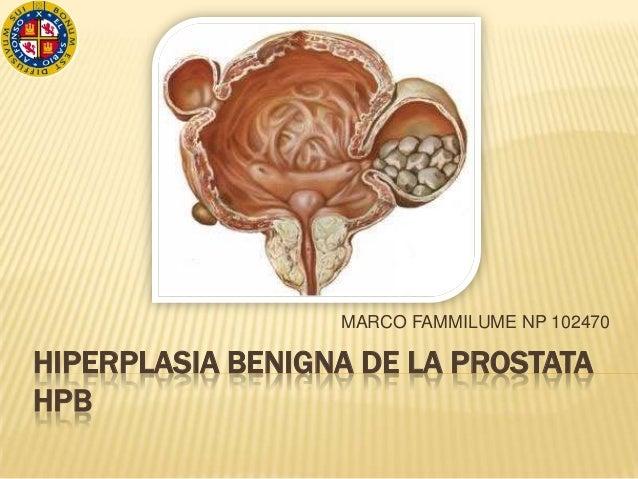 MARCO FAMMILUME NP 102470HIPERPLASIA BENIGNA DE LA PROSTATAHPB