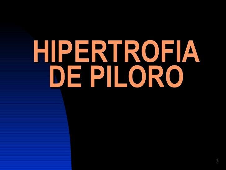 Hipertrofia De Piloro