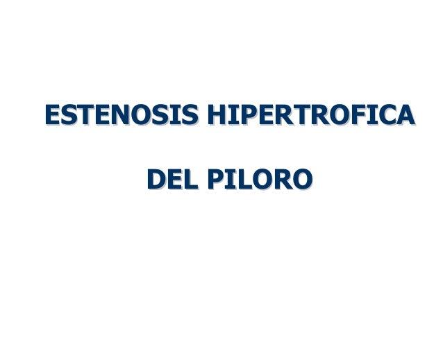 ESTENOSIS HIPERTROFICAESTENOSIS HIPERTROFICA DEL PILORODEL PILORO