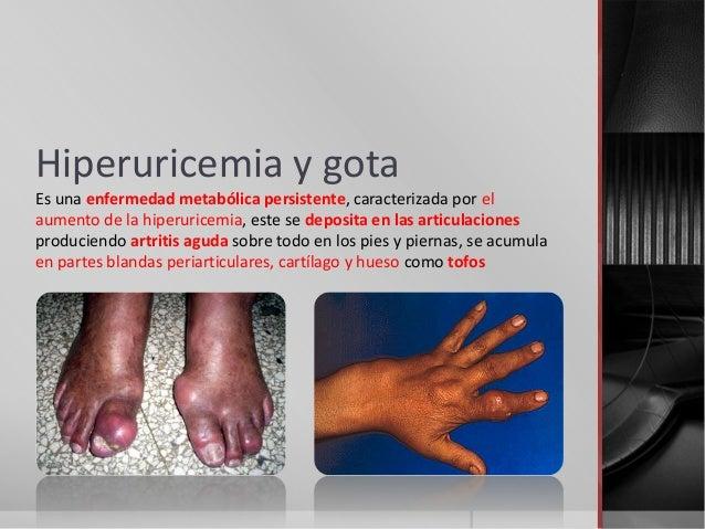 Hiperuricemia y gota Es una enfermedad metabólica persistente, caracterizada por el aumento de la hiperuricemia, este se d...