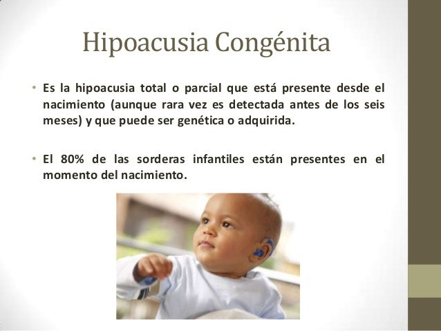 Image Result For Hipoacusia