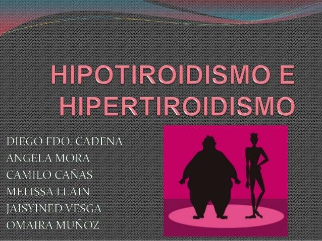 HIPOTIROIDISM      O