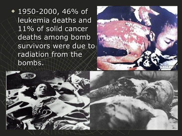 a photo essay on the bombing of hiroshima and nagasaki deaths    a photo essay on the bombing of hiroshima and nagasaki deaths   image