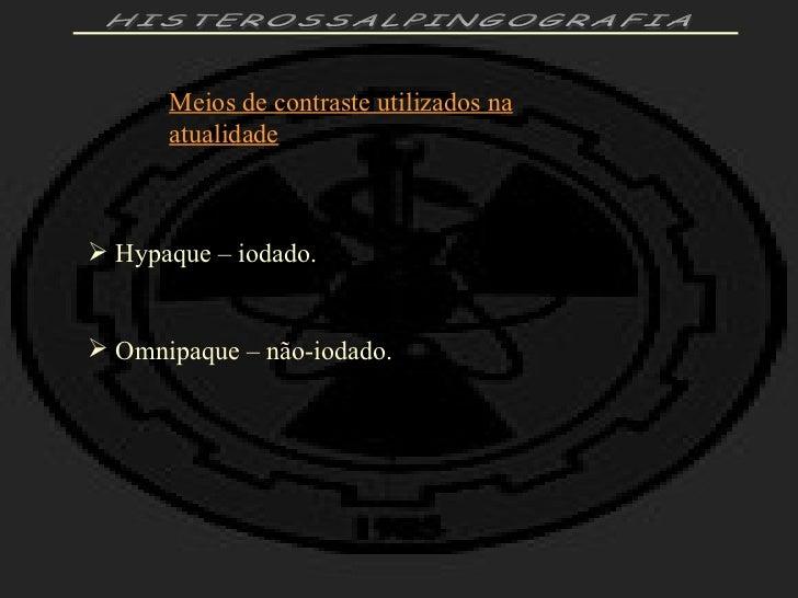 Exame histerossalpingografia preparo