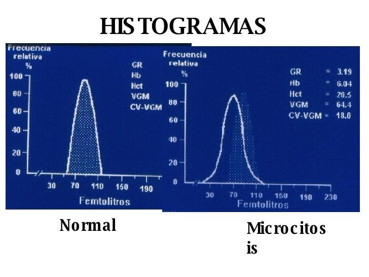 HISTOGRAMAS Normal Microcitosis