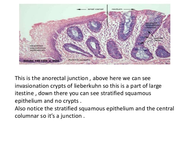 Rectoanal junction histology labeled