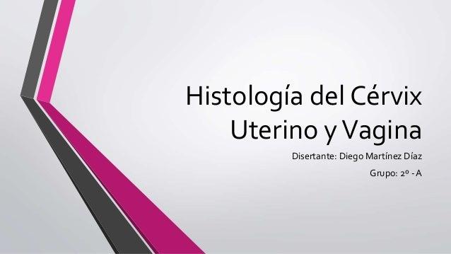 Histología del Cérvix Uterino yVagina Disertante: Diego Martínez Díaz Grupo: 2º - A