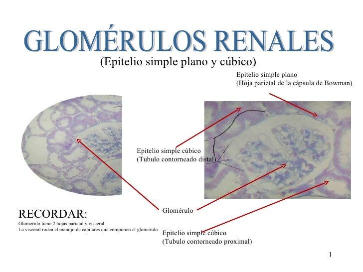GLOMÉRULOS RENALES (Epitelio simple plano y cúbico) Glomérulo Epitelio simple cúbico (Tubulo contorneado distal) Epitelio ...