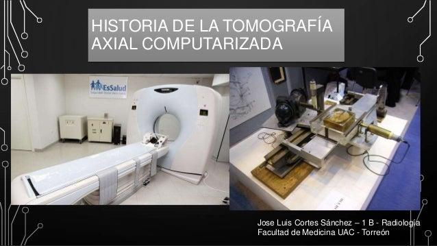 HISTORIA DE LA TOMOGRAFÍA AXIAL COMPUTARIZADA  Jose Luis Cortes Sánchez – 1 B - Radiología Facultad de Medicina UAC - Torr...