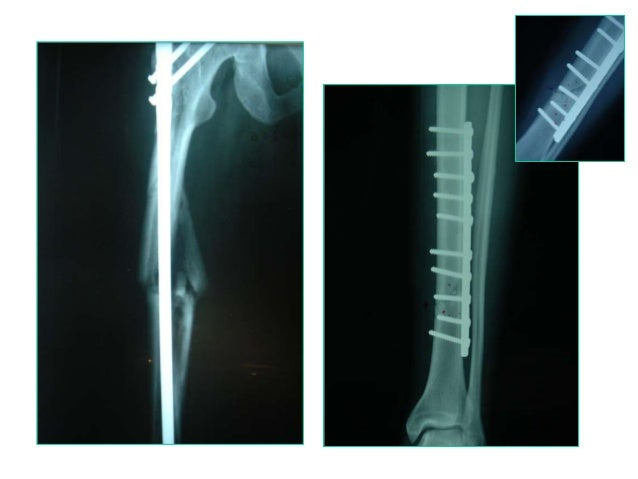 plate osteosynthesis history History of plating dates back to 1886 when the first reported use of a plate for internal fixation of fracture was accomplished by hansman[1] the science of plating flourished for several.