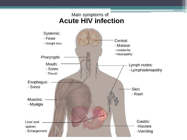 hiv case studies symptoms Some case studies of aids/hiv misdiagnosed as one of the many common infectious diseases with overlapping symptoms thus, it is recommended that hiv be.