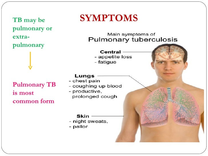 Tuberculosis: Causes, Symptoms, Prevention and Natural Treatment ...
