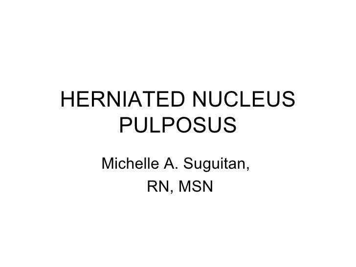 HERNIATED NUCLEUS PULPOSUS Michelle A. Suguitan,  RN, MSN