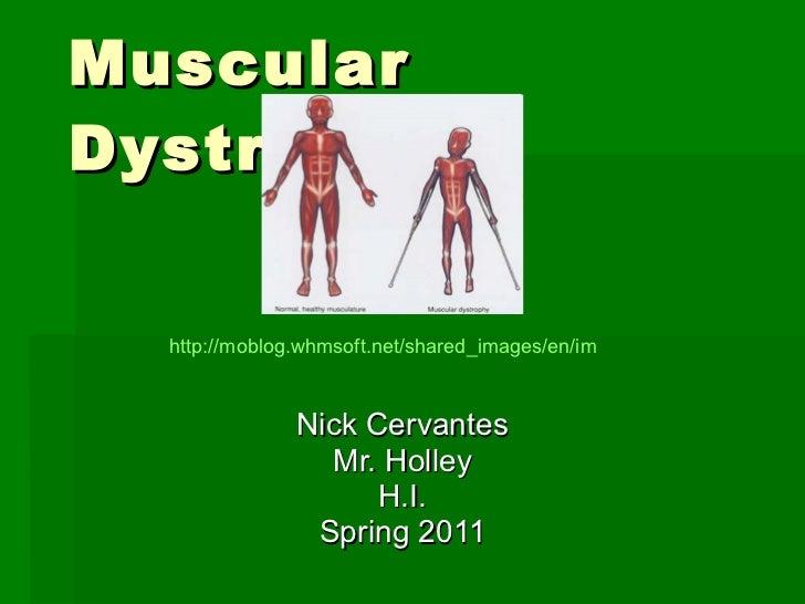 Muscular Dystrophy Nick Cervantes Mr. Holley H.I. Spring 2011 http://moblog.whmsoft.net/shared_images/en/image003_2999b163...