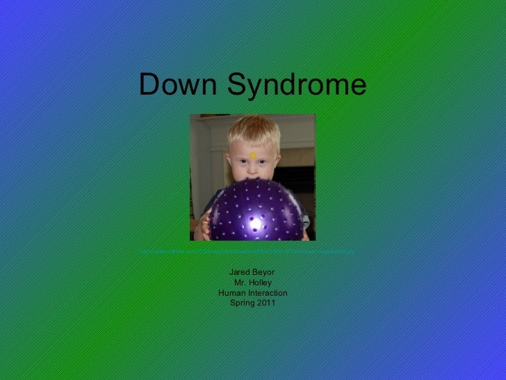 Down Syndrome Jared Beyor  Mr. Holley Human Interaction Spring 2011 http://www.babble.com/CS/blogs/strollerderby/2007/10/0...