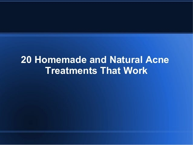 Homemade acne treatments that work