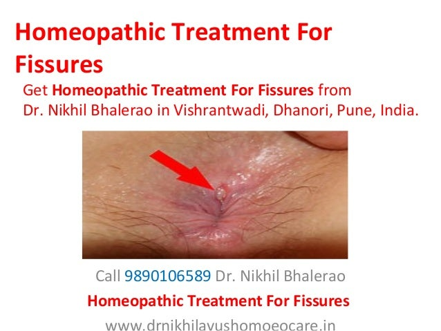 ayurvedic treatment for anal fissure