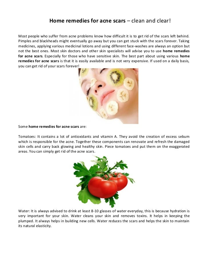 how to get clean and clear face home remedies