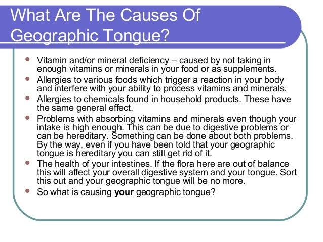 Geographic tongue: MedlinePlus Medical Encyclopedia